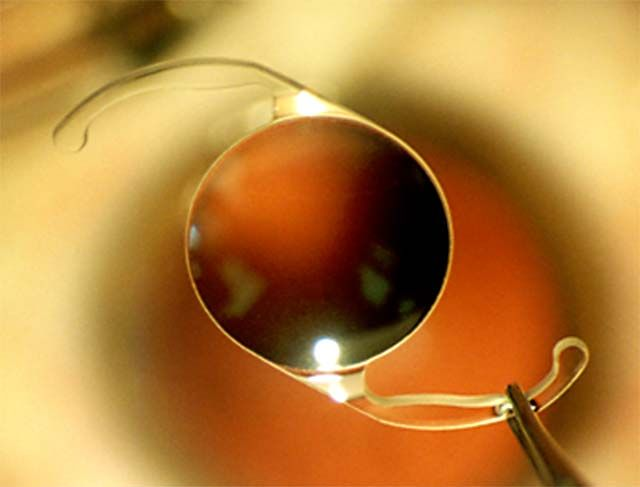 A close-up of IOL being held by tweezers over an eye.