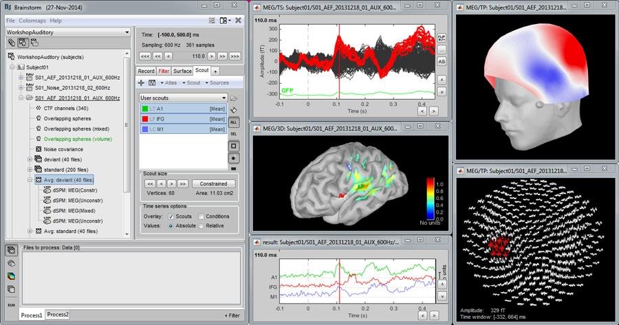 McConnell_Brain_Figure_1_w.jpg