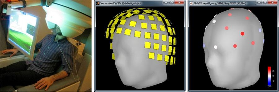 McConnell_Brain_Figure_2_w.jpg