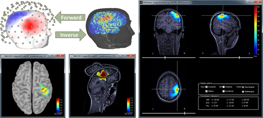 McConnell_Brain_Figure_4_w.jpg
