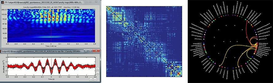 McConnell_Brain_Figure_5_w.jpg