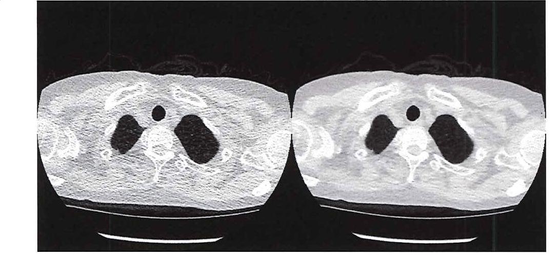 図 1. 超低線量 CT (左) と従来の CT (右) の画質の比較