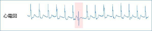 心電図の異常検知