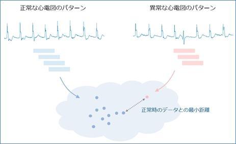 心電図の部分時系列に対してk最近傍法を用いて異常なパターンを検出
