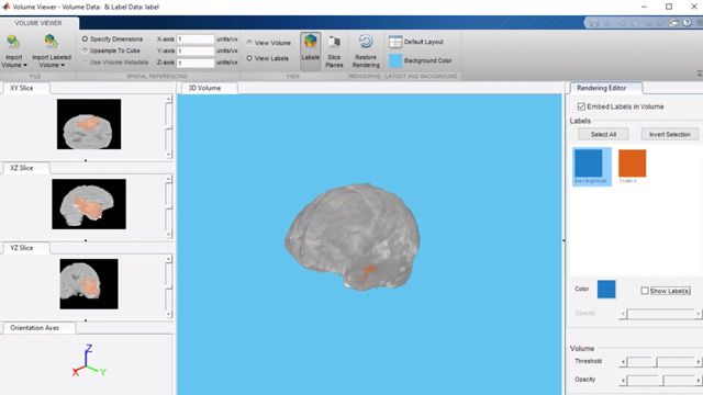 Perform segmentation of brain tumors from 3D medical images using U-Net neural network.