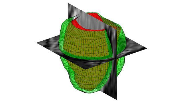 3D 画像処理 – MATLAB & Simulink