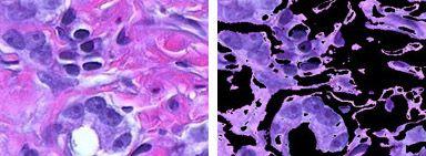 色情報からの細胞核の抽出
