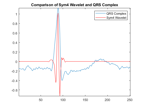 r wave detection in the ecg matlab simulink mathworks 日本