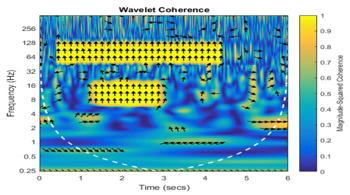 Wavelet Coherence