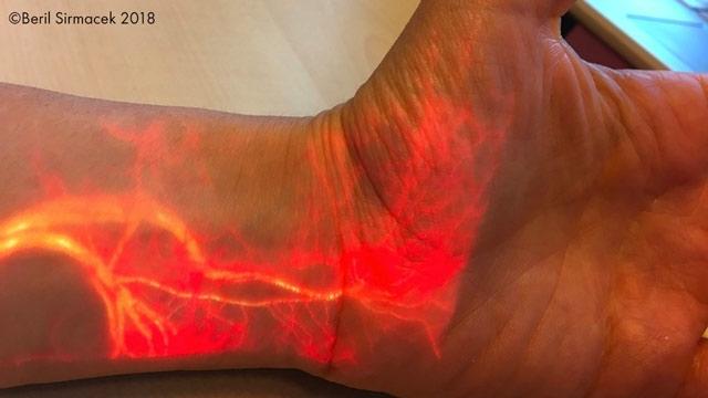 リアルタイムでの血流の拡張現実投影。