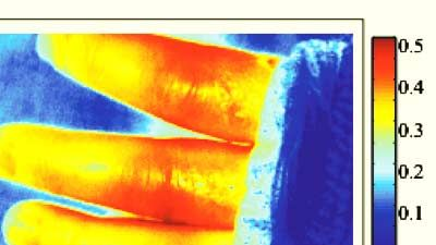 Canada's Institute for Biodiagnostics Develops an Imaging Tool for Assessing Burn Injuries