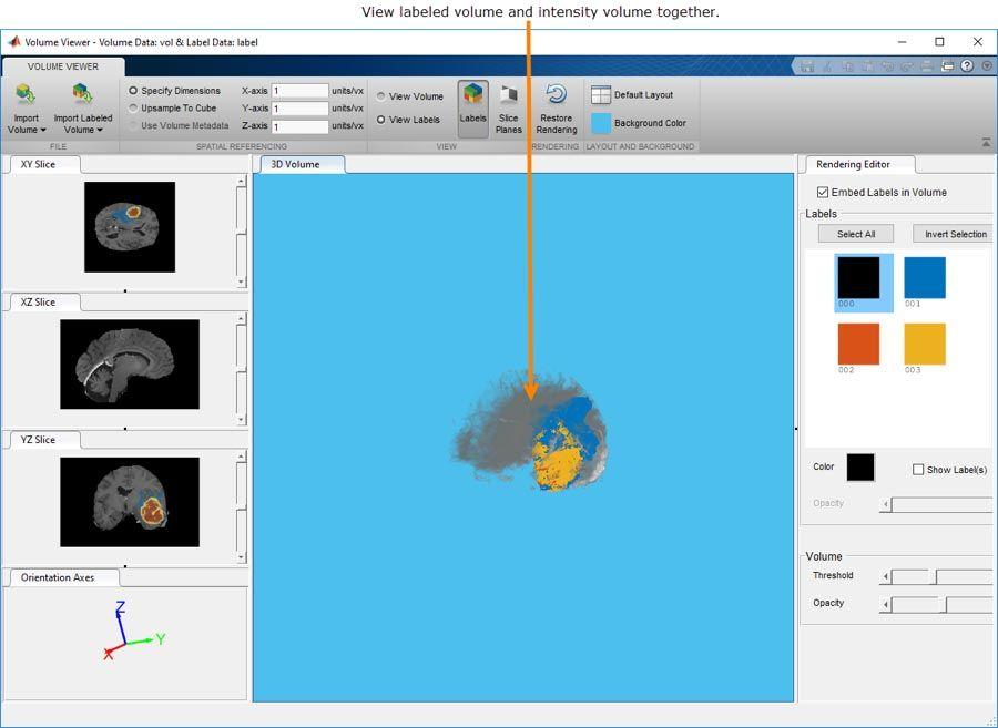 ボリューム ビューアー アプリで、3次元ボリュームデータもしくはラベル付けされた3次元ボリュームデータを。