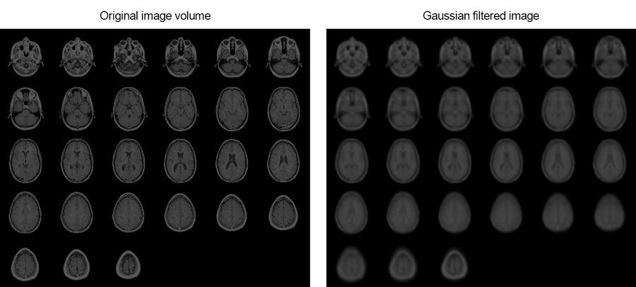 この例では、3 次元ガウシアンフィルターを用いて人間の脳の MRI 画像を滑らかにする方法について説明します。