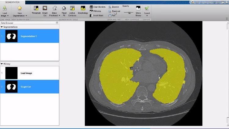 Image Processing Toolbox で利用可能なボリューム ビューアー アプリなどの 3 次元機能を見る。