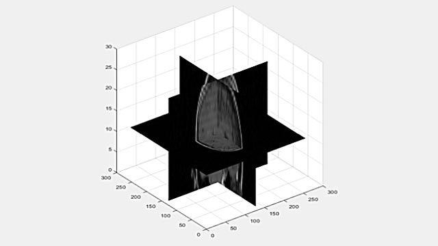 3 次元ボリューデータを 2 次元平面で参照。