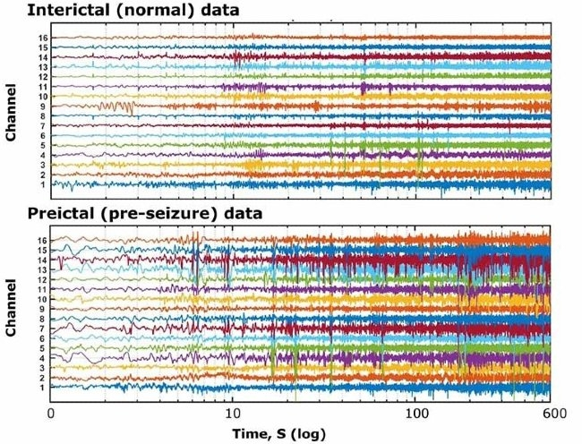 Intracranial EEG data provided by Kaggle.