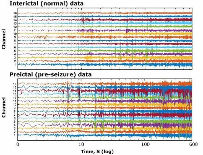 正常時および発作前に、てんかん患者から得られた脳波 (EEG) 記録に対応する信号データの複数のチャネル。